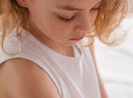 Czy szczepienia przeciwko ospie wietrznej powinny być powszechne?