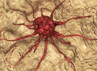 Immunologia nowotworów