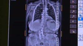Nie patrz krzywo na witaminę D3. Jej niedobór grozi nie tylko osteoporozą