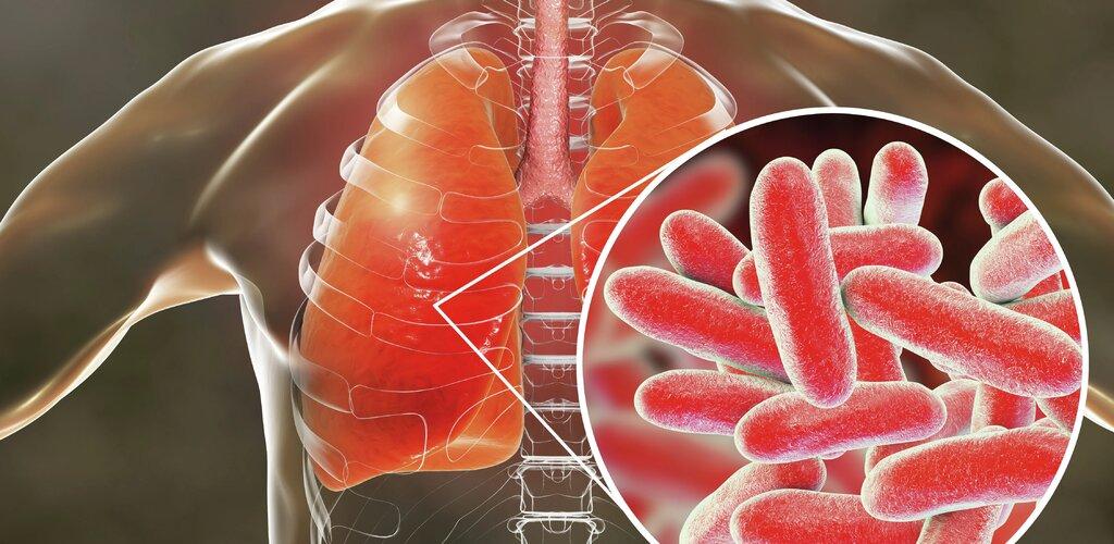 """""""Legionella pneumophila"""" pod okiem naukowców z SGGW"""
